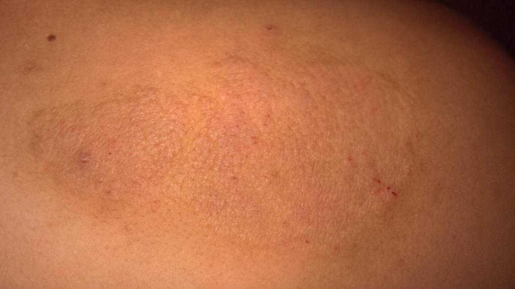 Resolving Eczema with Acupuncture and Chinese Herbs